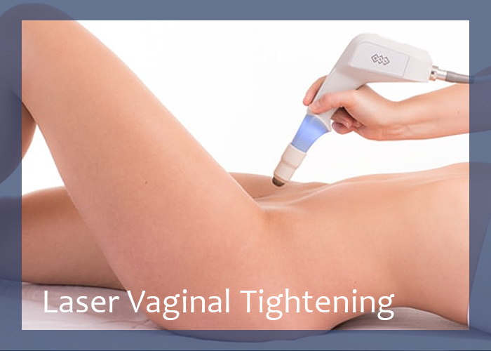 5 Reasons Why Laser Vaginal Tightening is the Best Option for Women in Delhi