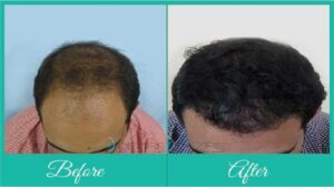 hair loss treatments for men in Pune