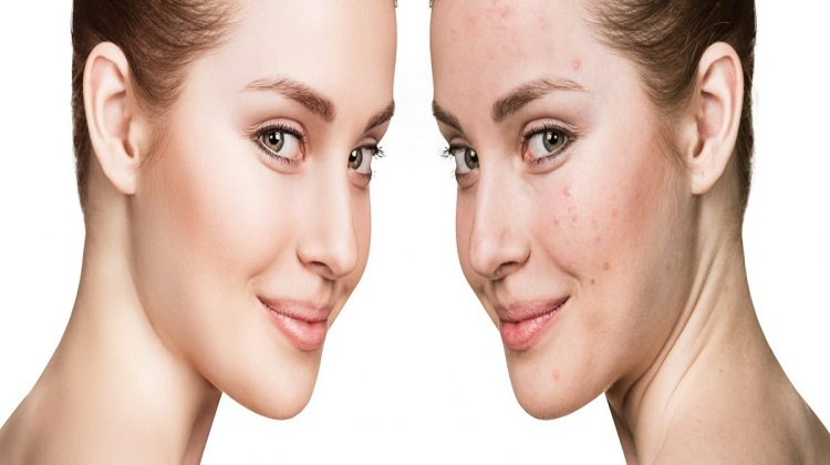What Are the Options Available to Treat Pimples